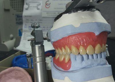 Prothèses validées par la Dentiste ...et le Patient