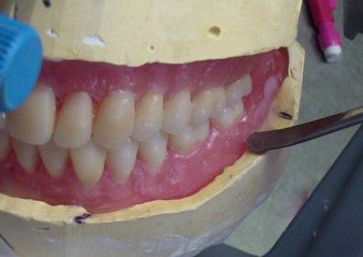 """Chaque prothèse conçue et validée est cuite selon la technique de la mise en moufle, la résine acrylique """"cliniquement incassable"""" est bien sûr disponible à la demande."""