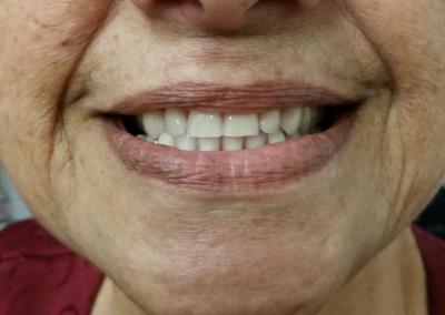 Réhabilitation complète: Patiente et Praticien ravis