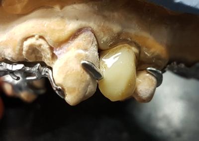 Vue frontale d'une contre plaque, le crochet Canine peut être supprimé si inesthétique