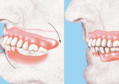 Cette prothèse inférieure remplace partiellement les dents du bas. Elle sert à empêcher le décrochage de la prothèse du haut et évite à vos dents restantes de pivoter. Conservez une bonne mastication! Votre confort passe aussi par la stabilité.